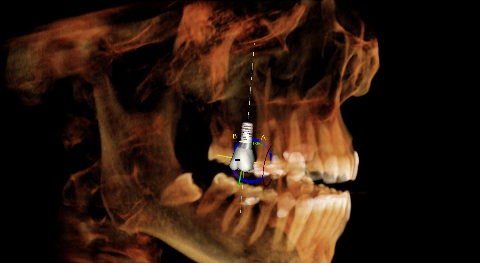 A dental implant scan and proposal