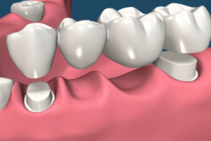 An example of a large Dental Bridge