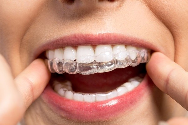 An example of invisalign