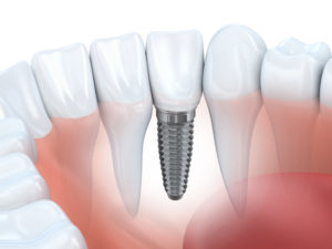 An illustration of a dental implant