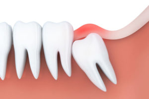 A depiction of an impacted wisdom tooth
