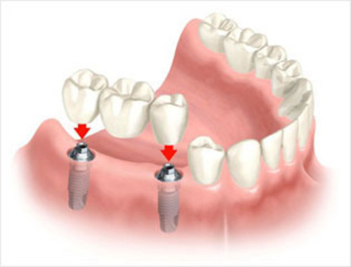 Dental Bridge description